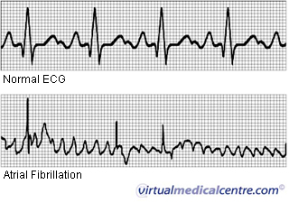fibrillation cardiaque